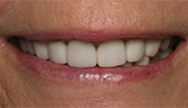 Perfected smile after cosmetic dentistry