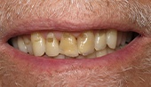 Smile with severe decay around the gums