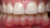 Healthy restored top row of teeth after cosmetic dentistry