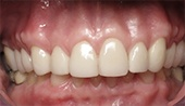 Healthy beautiful smile after restorative dentistry