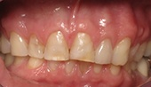Worn and decayed smile before restorative dentistry