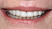 Perfected healthy smile after restorative dentistry