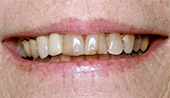 Severely discolored and decayed smile before restorative dentistry