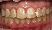 Severe tooth decay and discoloration before dental treatment