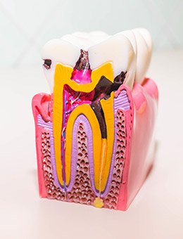 toy model of tooth