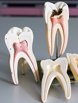 three models in teeth