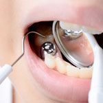 Dentist in Murphy for tooth-colored fillings.