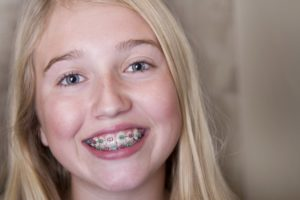 A smiling child wearing braces.