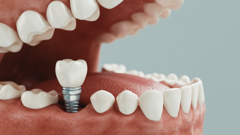 a digital image of a dental implant sitting in the lower arch of the mouth