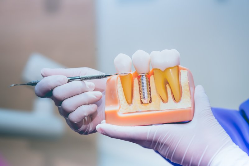 Dentist pointing to model of dental implant